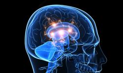 FDA Supports Brain Stimulator as Epilepsy Treatment