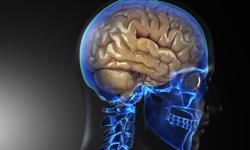 New Noninvasive Epilepsy Surgery Worth Looking Into