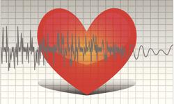 Nitroprusside Not Linked to Post-cardiothoracic Surgery AF