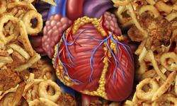 Study: AF After TAVI May Cause Stroke
