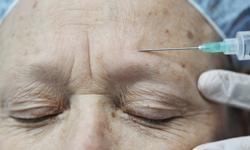 Study: Botox Useless in Fighting Migraines