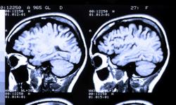 Study: Roseola may cause Epilepsy
