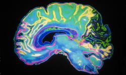 Study: Childhood Onset Epilepsy makes Brain Age Faster