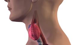 Thyroid Function Linked to AF Risks